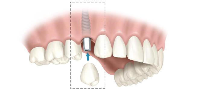 Informação sobre implantes dentários